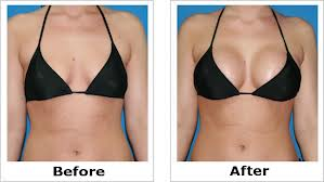 Image result for Breast Lift Surgery before after