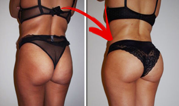 Buttocks enlargement cream or Buttocks enhancement cream