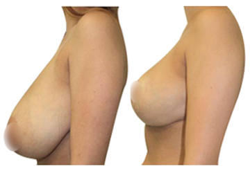 How to get bigger breast naturally overnight using BREAST- UP CREAM